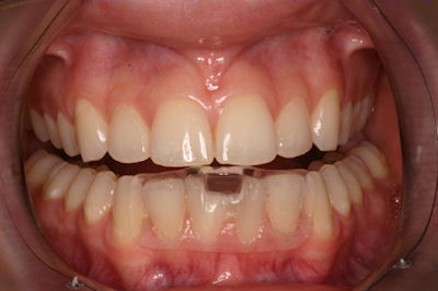 Dentists Confused About Nti Says Maker