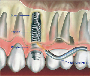 A proposed near-infrared oral probe can noninvasively assess peri-implantitis earlier and more accurately than conventional methods.
