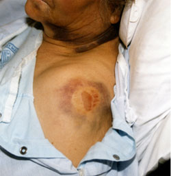 Picture of victim's bite marks