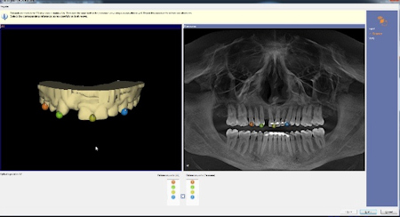 Integration of data between CAD/CAM and CBCT