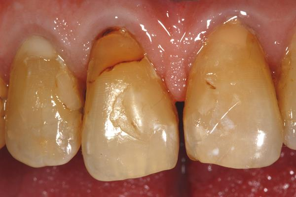 Preoperative image of tooth No. 8