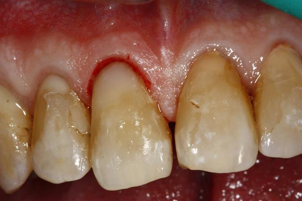 Restored tooth immediately after the procedure