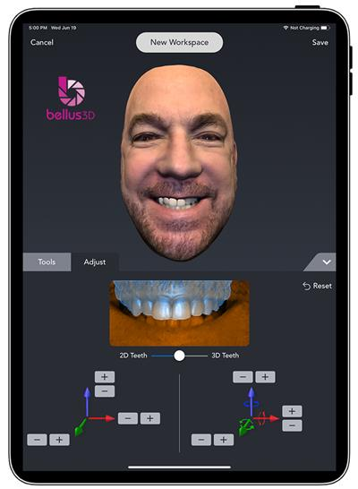 Bellus3D Dental Pro with Visual Aligner tool