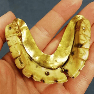 False teeth of hippo or walrus ivory, set in gold