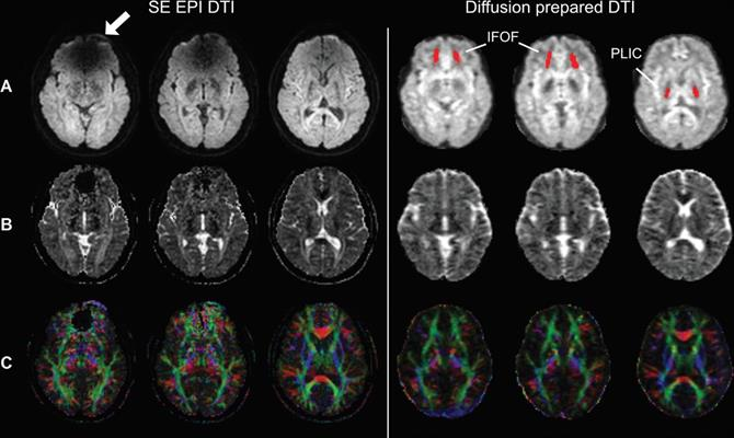 Spin-echo (SE) echo-planar imaging (EPI) and diffusion-prepared diffusion tensor imaging (DTI) axial images acquired at 3 tesla in a subject with metal braces