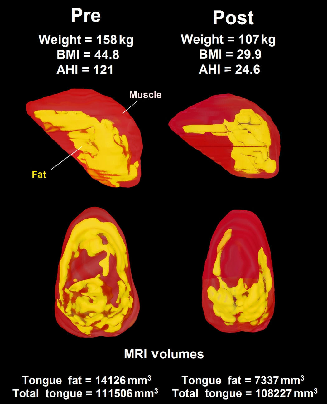 Three-dimensional reconstruction of tongue and tongue fat derived from axial MRI and Dixon fat-only MRI show the loss of tongue fat between baseline and six-month follow-up in the same male patient