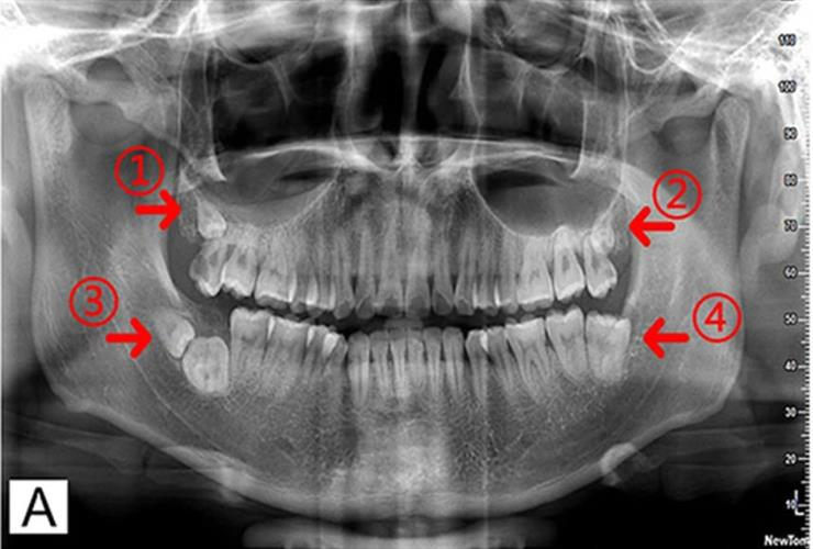 Pretreatment panoramic tomogram showed three supernumerary teeth in all four quadrants