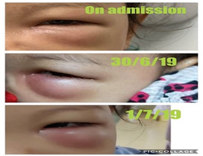 The progression of the swelling, which worsened on the third day after admission, of the girl