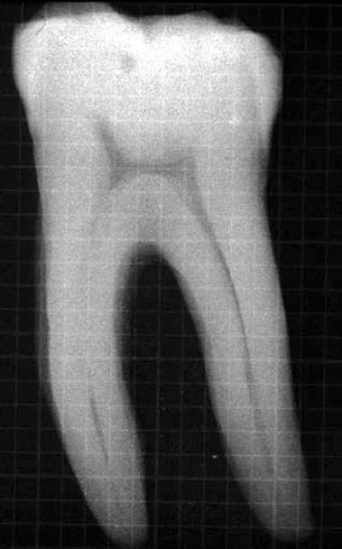 Calcified mandibular molar.