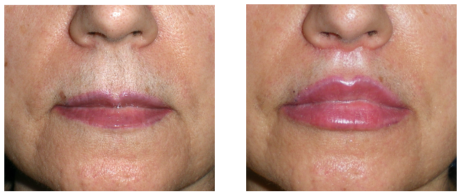 Before and after lip treatment by plastic surgeon
