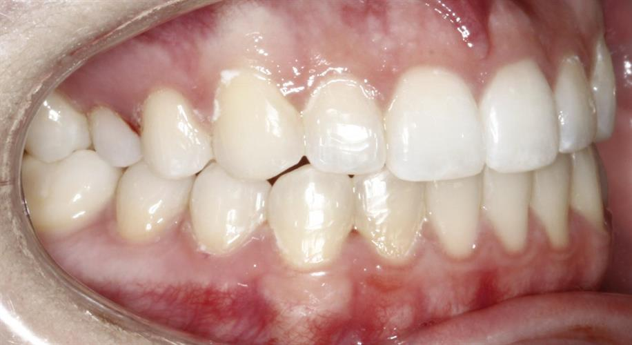 Image of teeth after treatment