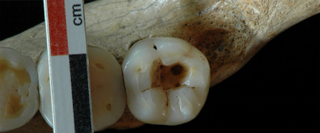 Occlusal view of the right third molar