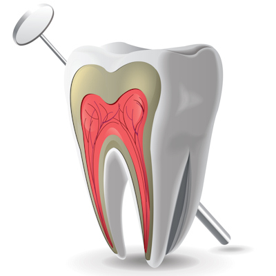 Picture of tooth with pulp